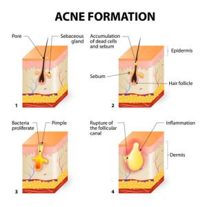 acne_main