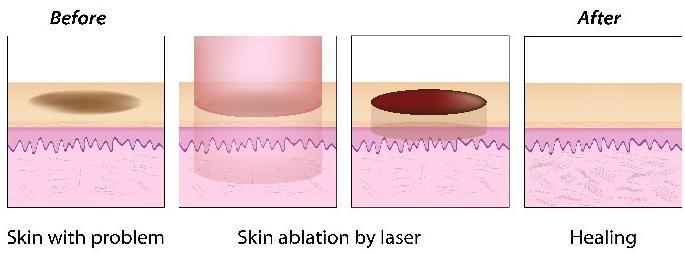 acne_procedure