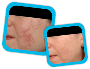acne_scars_result1