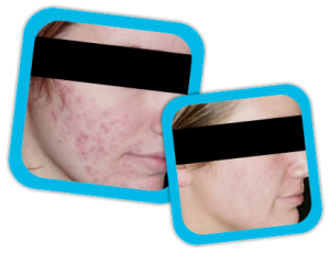 acne_scars_result2