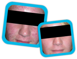 acne_scars_result3