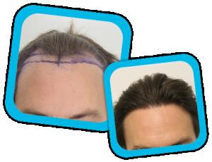 Hair_Transplant_result1