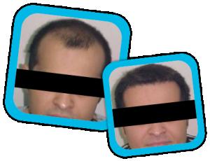 Hair_Transplant_result2
