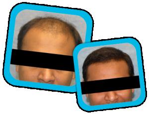 Hair_Transplant_result3