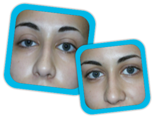 Eyelid_Surgery_result1