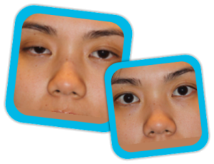 Eyelid_Surgery_result2