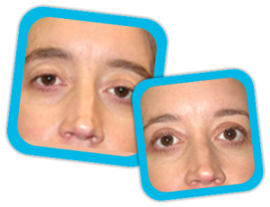 Eyelid_Surgery_result3