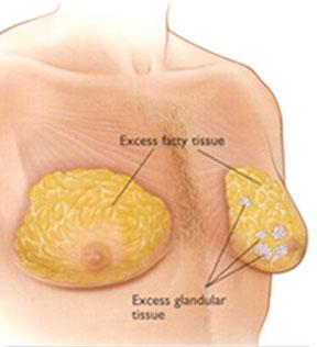 Gynecomastia_main