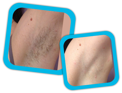 Full Body Laser Hair Removal Treatment Cost In Jaipur Abhishek