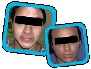 Viltigo_Treatment _result2