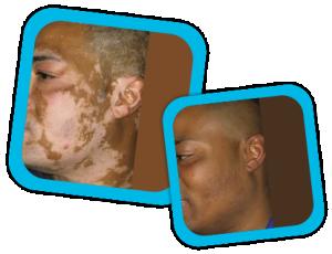 Viltigo_Treatment _result3