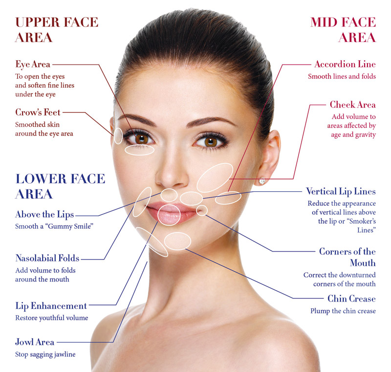 dermal_fillers_main
