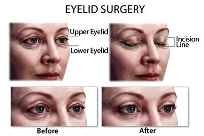 eyelid_surgery_procedure