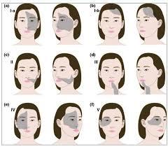 vitiligo_areas